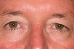 Eyelid and Upper Facial Surgery