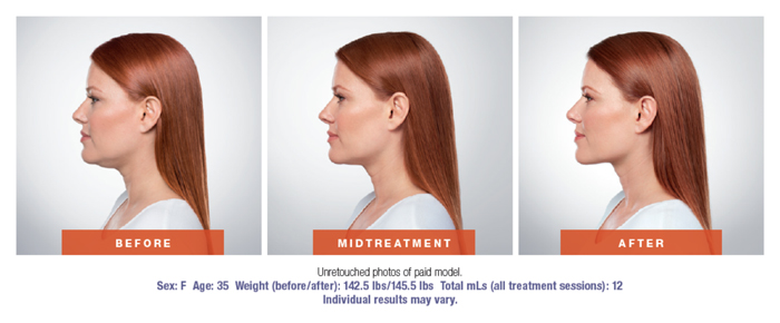 Kybella Before & After Results